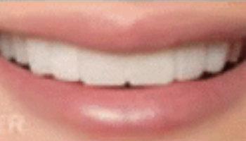 Atlantic Dental Healthcare - Before & After