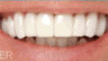 Dental Emergency in Old Bridge NJ