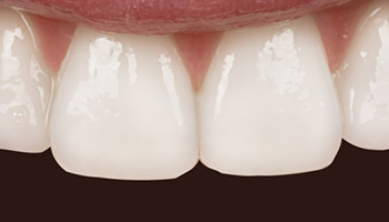 Atlantic Dental Healthcare - Before & After