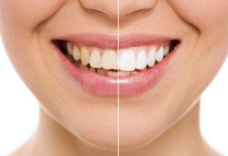 Atlantic Dental Healthcare - Teeth Whitening